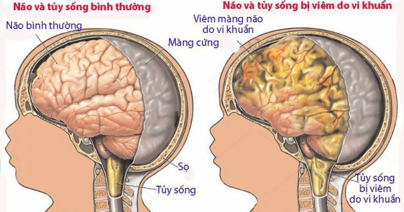 Viem Mang Nao O Tre So Sinh Cleaned