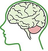 cerebellum-damage-large.png