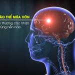 Điều trị bại não thể múa vờn (Rối loạn vận động không tự chủ)