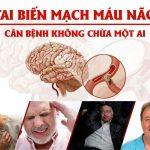 Tai biến mạch máu não - Phục hồi chức năng sau tai biến