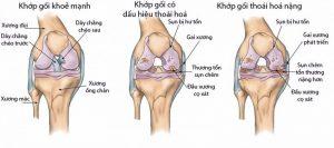Thoai Hoa Khop Goi E1563526380457 3