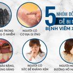 Viêm xoang mũi là gì? Cách điều trị nào hiệu quả?