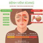 Viêm Xoang Mũi Cấp: Nguyên nhân, Triệu chứng, Cách điều trị