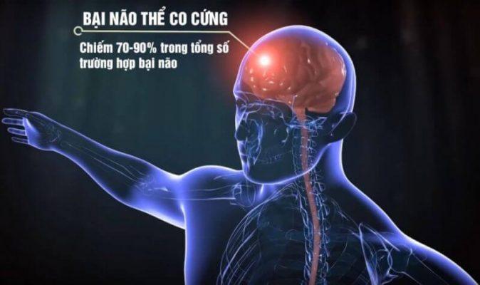Bai Nao The Co Cung