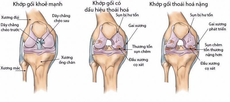 Thoai Hoa Khop Goi E1563526380457 2