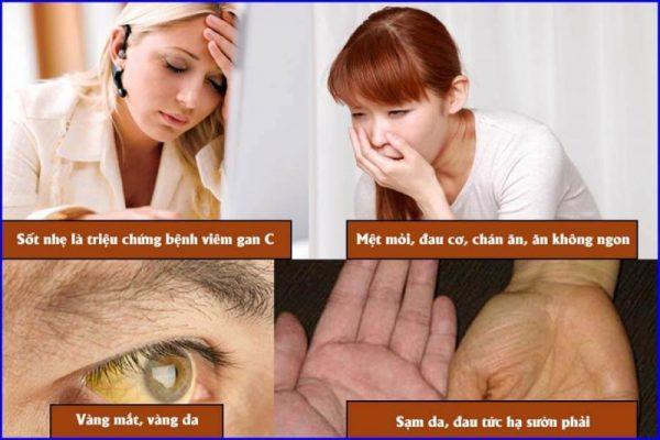 Bieu Hien Trieu Chung Viem Gan 1 E1576636880929 6