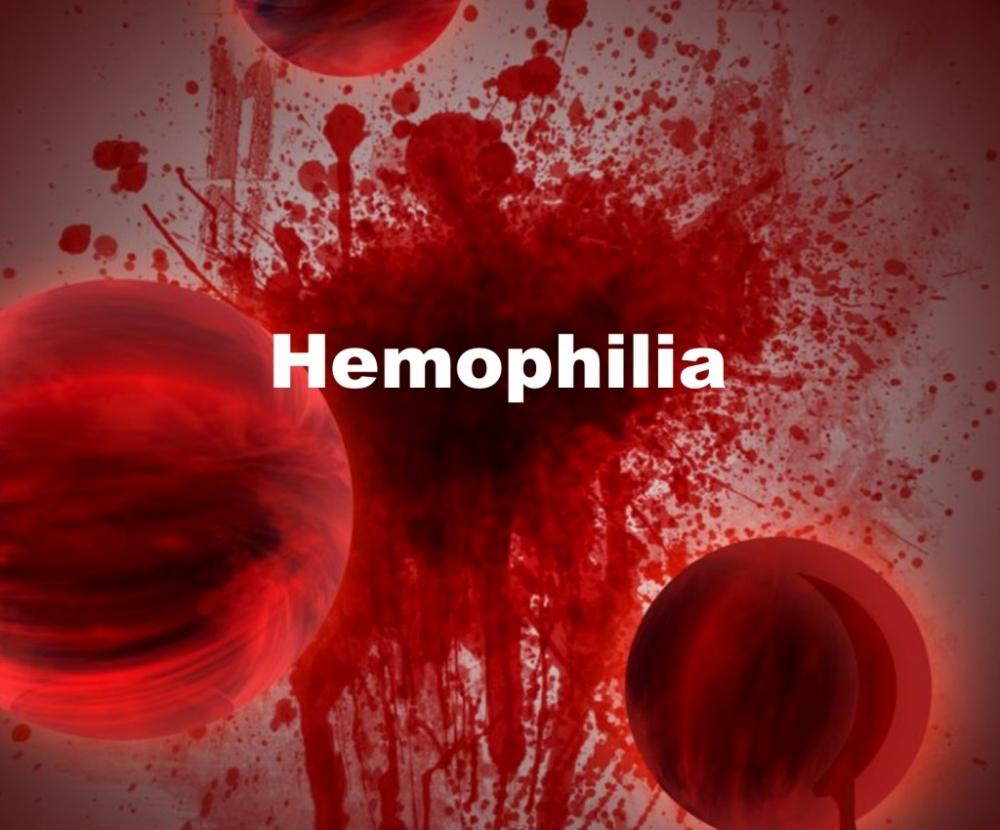 Căn bệnh máu khó đông di truyền nguy hiểm với các triệu chứng khó lường