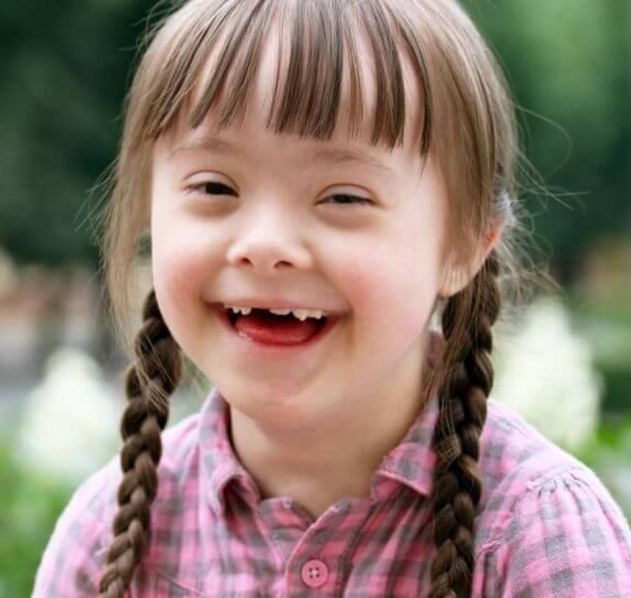 Trẻ bị Down có những đặc điểm hình thái khá đặc trưng