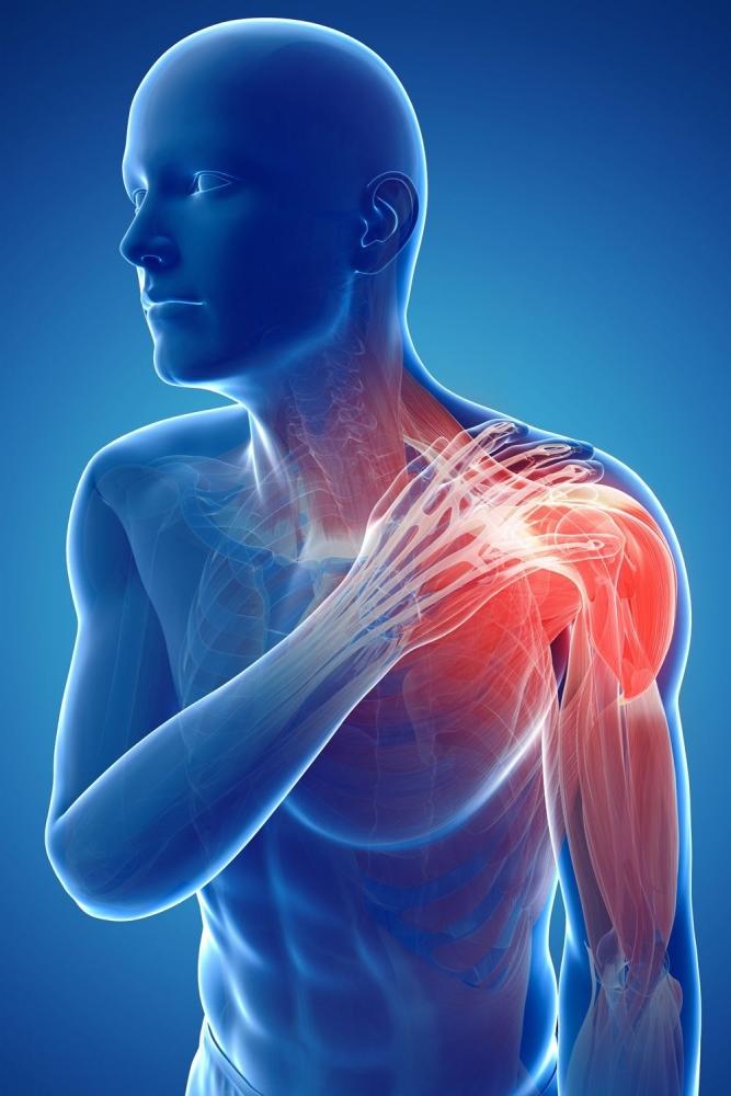 Đau cổ vai gáy là bệnh lý liên quan đến rối loạn thần kinh cơ