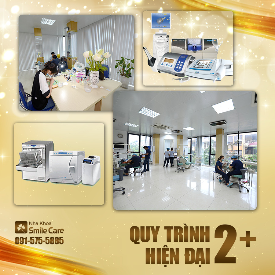 10+ địa chỉ trám răng uy tín ở Hà Nội có nha sĩ chuyên môn cao