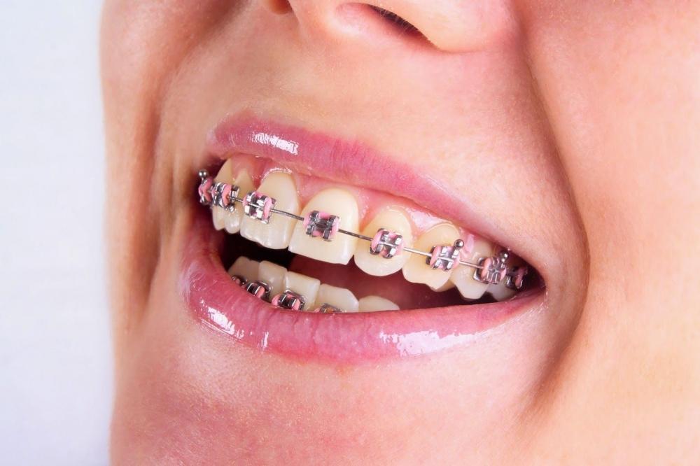 Niềng răng xưa mang hiệu quả chỉnh nha rất tốt