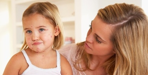 Cách chăm sóc và phòng ngừa bệnh thủy đậu cho trẻ
