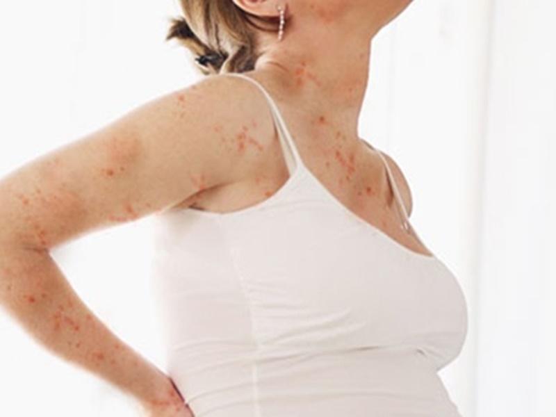 Nổi mề đay trên da gây ngứa ngáy khó chịu