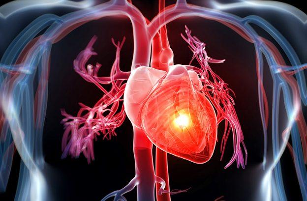 Bệnh tim do thiếu máu cục bộ rất phổ biến hiện nay
