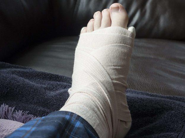 Sưng chân là dấu hiệu của tim bị phù nề